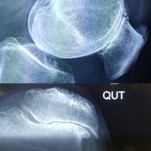 X Ray  e
