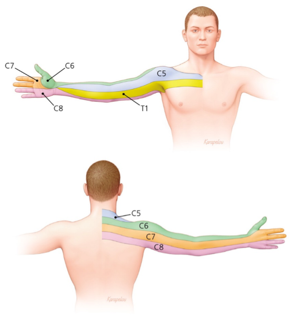 Cervical radiculopathy and referral pain